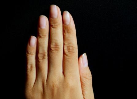 爪水虫・爪白癬の手の初期症状の写真画像。足の爪でうつる?効く薬紹介