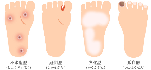 爪水虫・爪白癬と水虫とグリーンネイル、白癬菌と緑膿菌の違いとは?